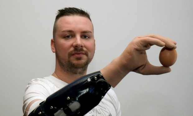 Milorad Marinkovic holds an egg with his new prosthetic hand (photo credit: Ronald Zak/AP)