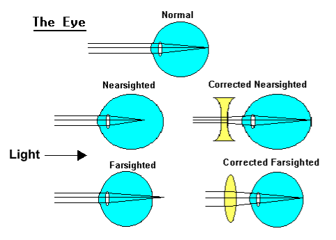 Different shaped lenses are needed to correct different kinds of vision problems. (Image credit: https://faculty.washington.edu/chudler/sight.html).